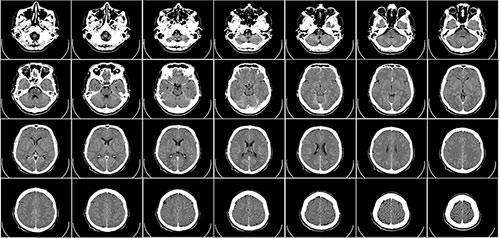 cerebro-tomografia